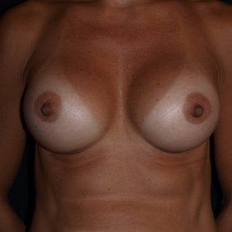 35-44 year old woman treated with Breast Implants 1611094