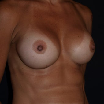 35-44 year old woman treated with Breast Implants after 1611094