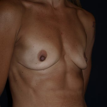 35-44 year old woman treated with Breast Implants before 1611094