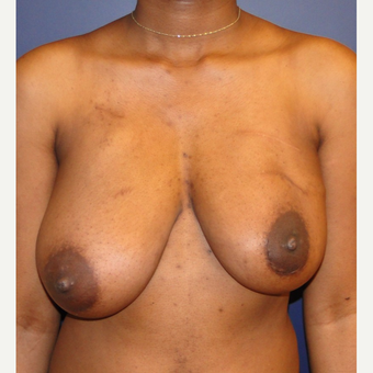 25-34 year old woman treated with Breast Reconstruction before 3224682