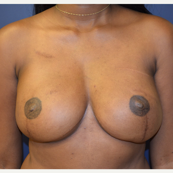 25-34 year old woman treated with Breast Reconstruction after 3224682