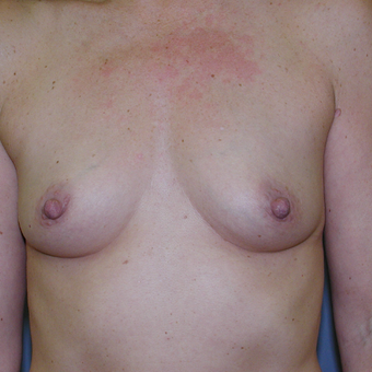 51 year old woman treated with Breast Augmentation before 3207288