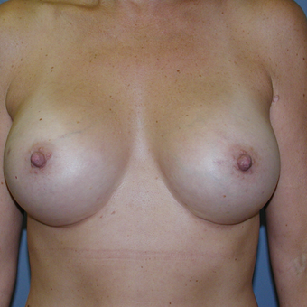51 year old woman treated with Breast Augmentation after 3207288