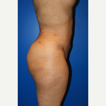 45-54 year old woman treated with Brazilian Butt Lift and liposuction after 3125809