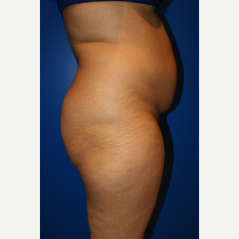 45-54 year old woman treated with Brazilian Butt Lift and liposuction before 3125809