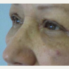 Eyelid Surgery after 3164336