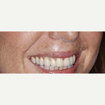 Replacing  Dental Crowns with new Ceramic crowns after 3093729