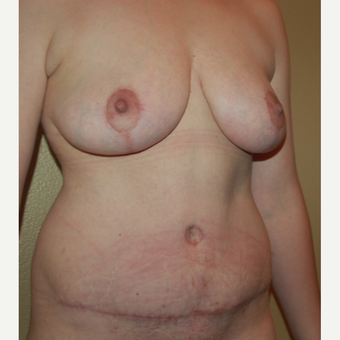 35-44 year old woman treated with Mommy Makeover after 3411373