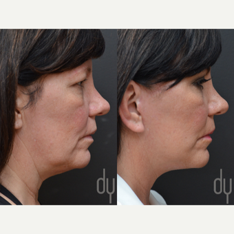 Facelift and Upper Blepharoplasty before 3116153