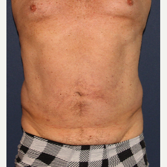 35-44 year old man treated with Liposculpture after 3110275