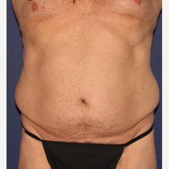 35-44 year old man treated with Liposculpture before 3110275