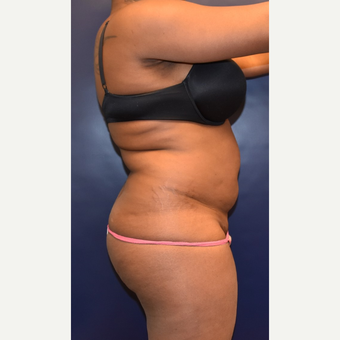 25-34 year old woman treated with Liposuction before 3344479