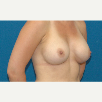 24 year old woman treated with Breast Augmentation after 3205558