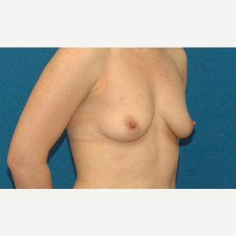 24 year old woman treated with Breast Augmentation before 3205558