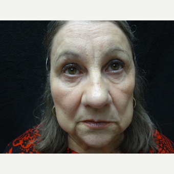 65-74 year old woman treated with Eye Bags Treatment after 3823416
