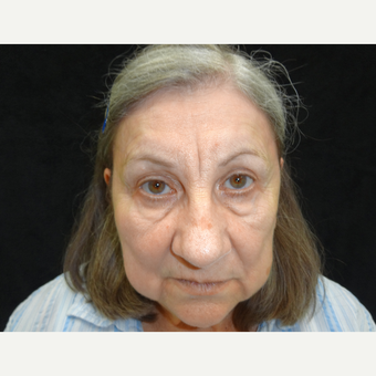 65-74 year old woman treated with Eye Bags Treatment before 3823416