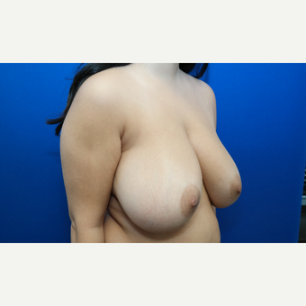 25-34 year old woman treated with Breast Reduction before 3099146
