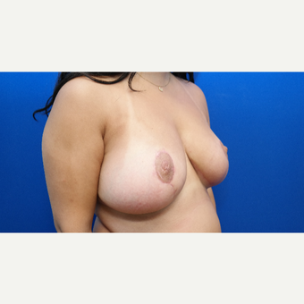 25-34 year old woman treated with Breast Reduction after 3099146