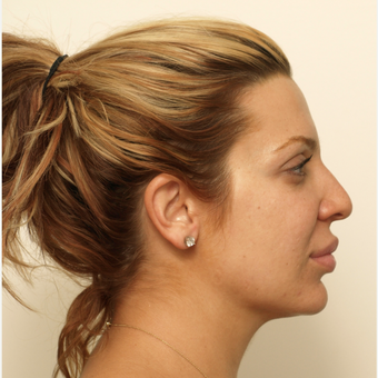 25-34 year old woman treated with Rhinoplasty before 3373418
