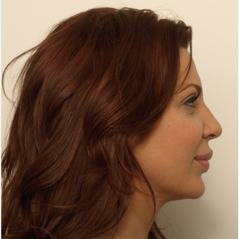 25-34 year old woman treated with Rhinoplasty after 3373418