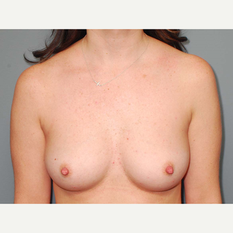 36 y/o Transaxillary Submuscular Breast Augmentation before 3066378