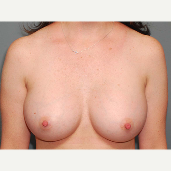 36 y/o Transaxillary Submuscular Breast Augmentation after 3066378