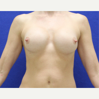 35-44 year old woman treated with Breast Augmentation before 3482361