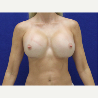 35-44 year old woman treated with Breast Augmentation after 3482361