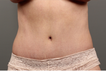 56 year old woman treated with Tummy Tuck after 2145654
