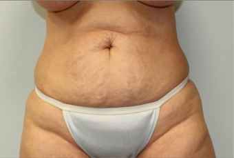56 year old woman treated with Tummy Tuck before 2145654