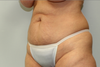 56 year old woman treated with Tummy Tuck 2145654