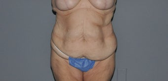 55-64 year old woman treated with Tummy Tuck before 2999812