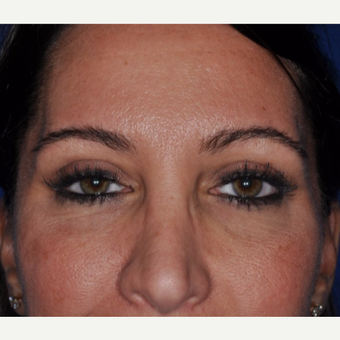 25-34 year old woman treated with Brow Lift after 3844232