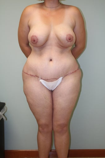 31 year old with excess skin and lipodystrophy