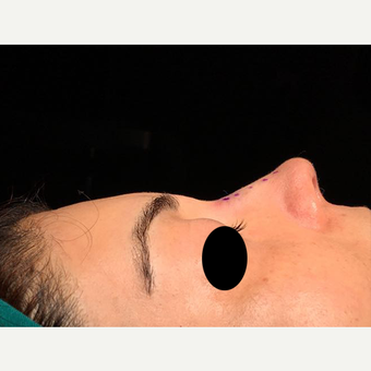 25-34 year old woman treated with Rhinoplasty after 3211733