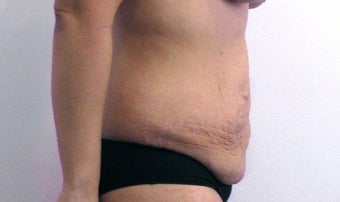 33 year old woman treated with Tummy Tuck before 2655633