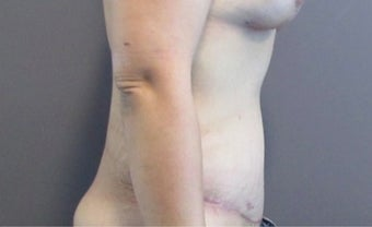 33 year old woman treated with Tummy Tuck after 2655633