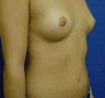 Transaxillary Breast Augmentation  316990