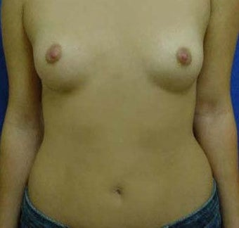 Transaxillary Breast Augmentation  before 316990