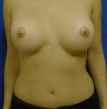 Transaxillary Breast Augmentation  after 316990