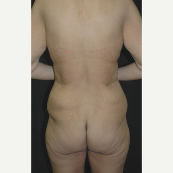 25-34 year old woman treated with Body Lift before 3181673