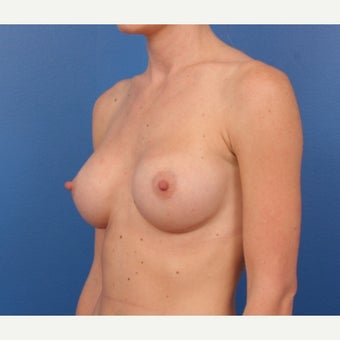 25-34 year old woman treated with Breast Augmentation after 1645874