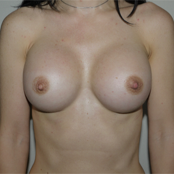 25-34 year old woman treated with Breast Augmentation after 3785079