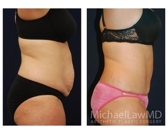 Abdominoplasty before 1293837