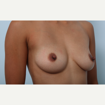 Breast Augmentation before 3459801
