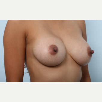 Breast Augmentation after 3459801