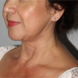 55 year old female treated with MACS face lift and full neck lift after massive weight loss. after 3711005
