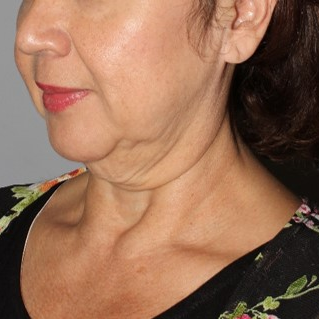 55 year old female treated with MACS face lift and full neck lift after massive weight loss. before 3711005