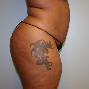 35-44 year old woman treated with Liposuction before 3442234