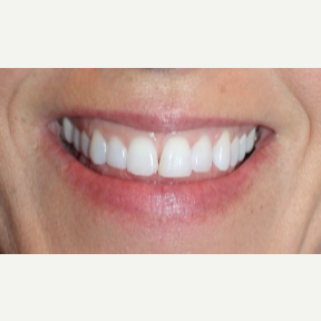 45-54 year old woman treated with Gum Lift and Veneers before 3273737
